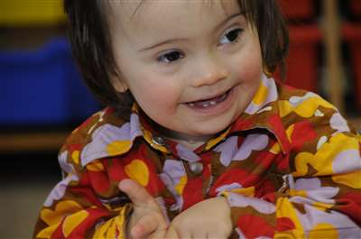 A photograph of a child with Down syndrome